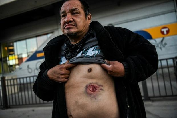 A man shows a wound he said was caused by tear gas shell during a BLM demonstration in Minneapolis o...