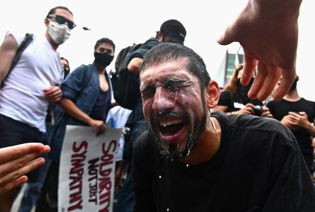 A protester has milk splashed in his eyes after being hit by tear gas during a Black Lives Matter pr...
