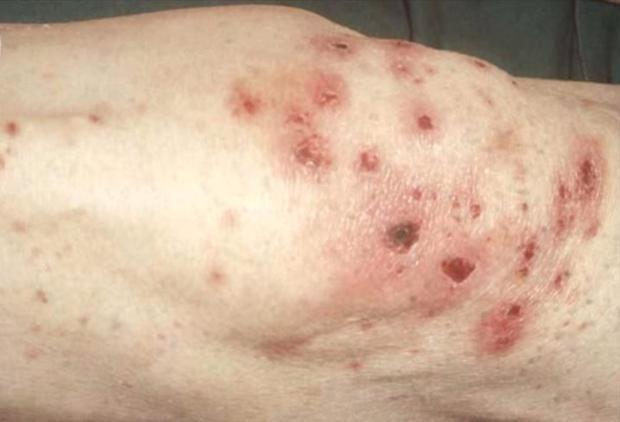 Lesions on the leg of a person with scurvy.