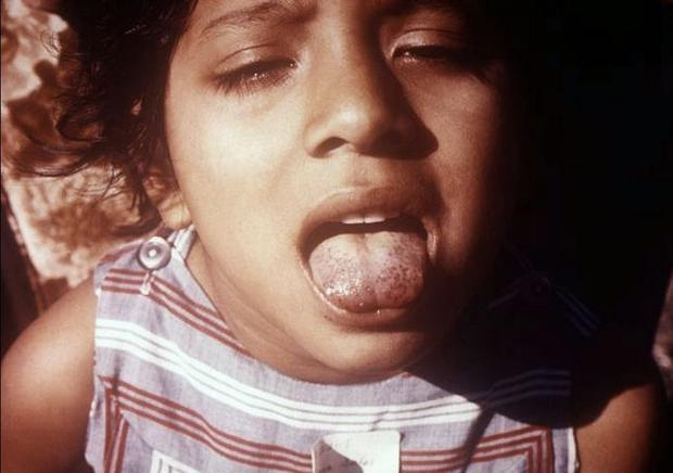 Patient presented with a  scorbutic tongue  due to what proved to be a vitamin C deficiency.
